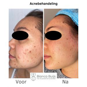 acne littekens verwijderen microneedling voor en na foto