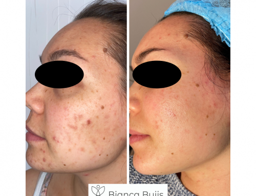 Benzoylperoxide goed middel om acne aan te pakken