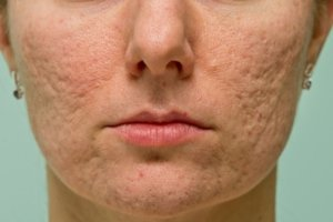acne littekens