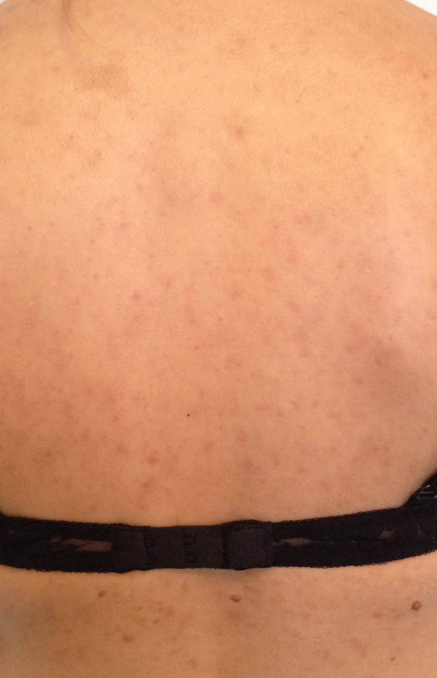 Puistjes en pukkels op je rug en schouders