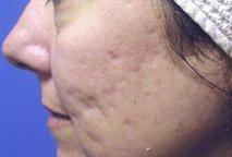 Acne littekens voor de behandeling