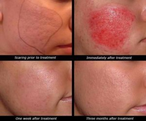 dermapen behandeling acne littekens wang