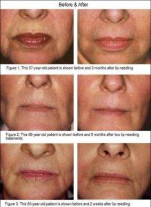 dermapen behandeling lip contour