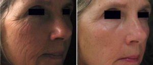 dermapen behandeling rondom ogen