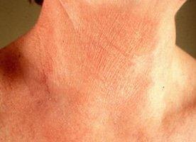 Eczeem gezicht oplossing zonder hormooncrème