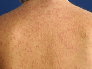 gistpuistjes op de rug, pityrosporum folliculitis op de rug
