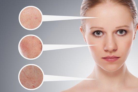 huidproblemen in gezicht