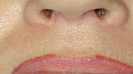 MediSkinCare gespecialiseerd in laserbehandelingen