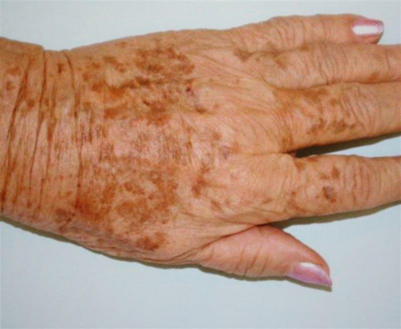 oude rimpelige handen met bruine vlekken