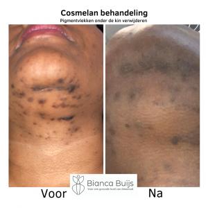 pigmentvlekken donkere huid verwijderen met cosmelan behandeling