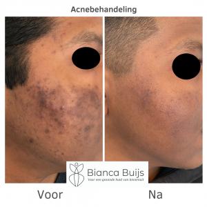 succesvolle acne behandeling donkere huid voor en na foto