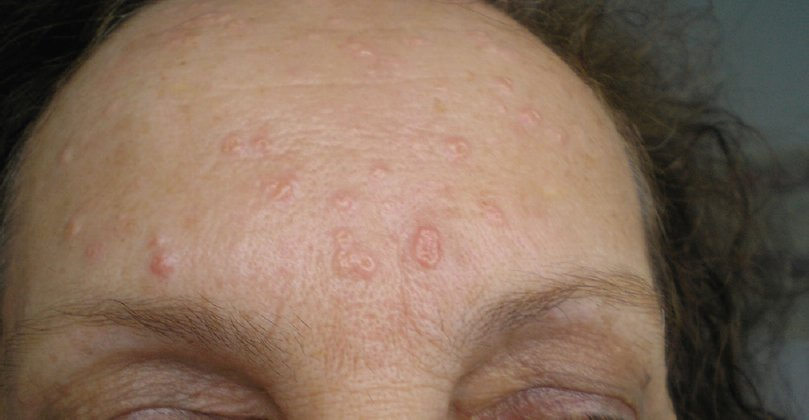 Gistpuistjes Of Folliculitis Is Geen Acne