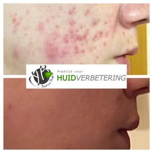 voor en na foto acnebehandeling