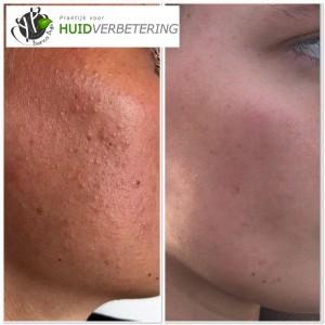 voor en na foto acnebehandeling gezicht
