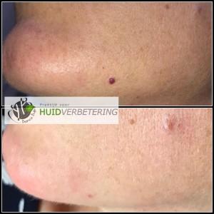 voor en na foto bloedblaasjes ofwel haemangioma senilis